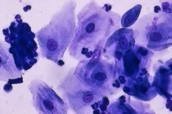 Microfotografía de un frotis vaginal colectado 8 - 9 días después del pico de LH, después del final del estro vaginal, y en el comienzo del metaestro vaginal (diestro)