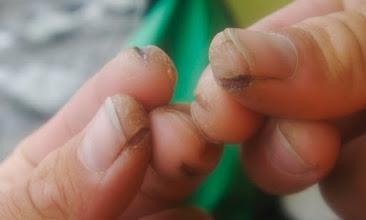 Photo: my fingers