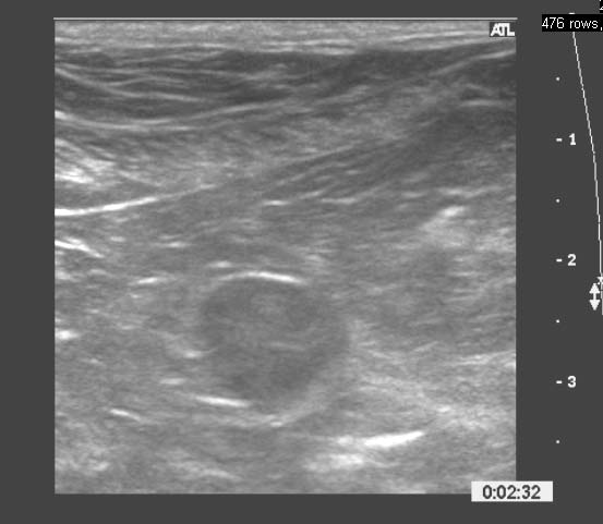 Sonogram of a normal prostate in a middle age neutered dog with the round prostate seen in transverse plane in the lower center of the image. The prostate is small (1.3 x 1.2 cm), round, and less echoic compared to surrounding fat.
