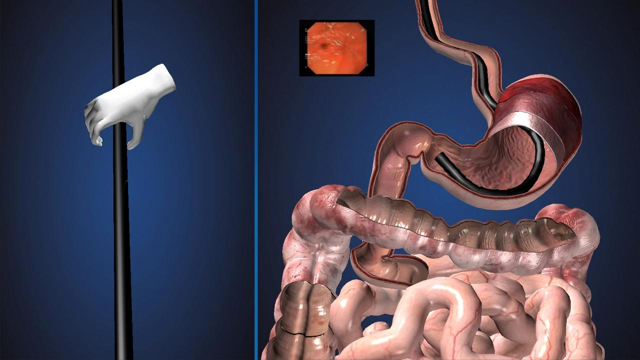 endoscopy 3d (free) - android apps on google play, Skeleton
