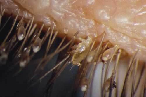 Hình ảnh rận mu kí sinh trên lông