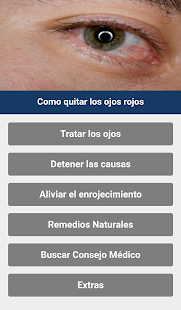 How to remove red eyes - náhled