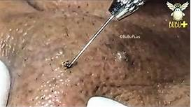 SPOTS, CYSTIC ACNE AND BLACKHEADS REMOVAL ACNE TREATMENT 191212!