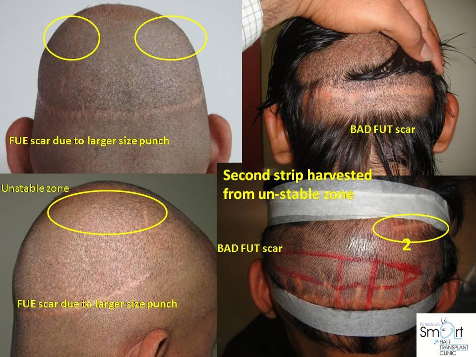 C:UsersADMINDesktopRevision Surgery in HT- Vadodara.jpg
