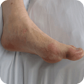 How to Get Rid of Gout