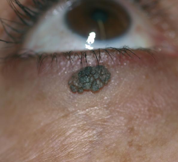 ouderdomswratten, verrucae seborroica verwijderen met laser. Huidverbetering Dr. Charlotte Nelissen (botox, fillers Hasselt, Tongeren, Maastricht, Bilzen)
