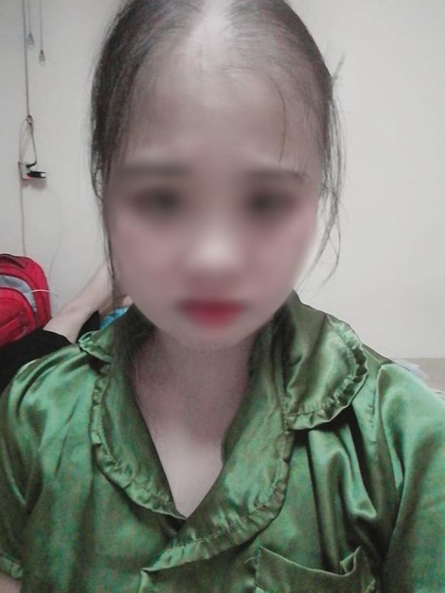 Mái tóc cô gái trẻ đã rụng gần hết sau các đợt hóa, xạ trị