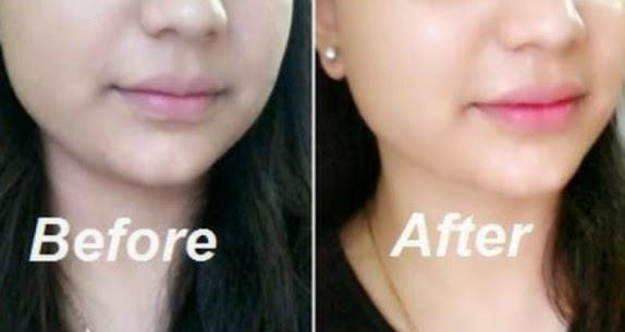 Lighten Skin Naturally 1.1 MOD Apk Download 1