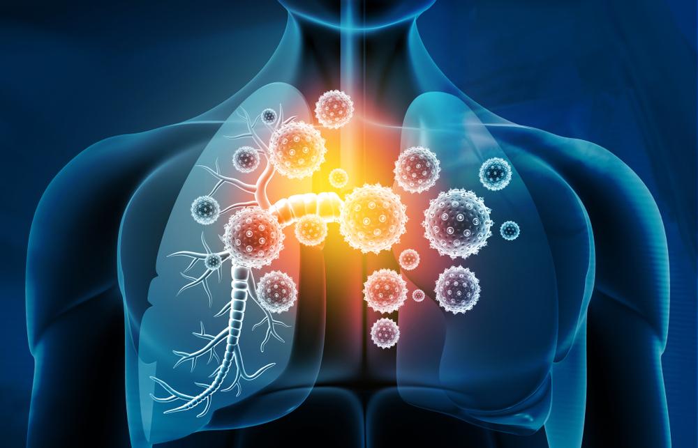 دواء زيثروماكس لعلاج الالتهاب الرئوي