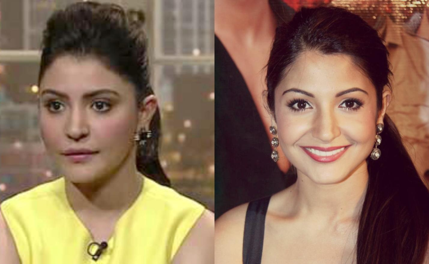 http://vanani.com/wp-content/uploads/2015/05/Anushka-Sharma-spoke-Up-regarding-Her-%E2%80%9CLip-Job%E2%80%9D-3.jpg
