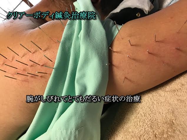 左腕がしびれてとてもだるくてつらい症状の治し方