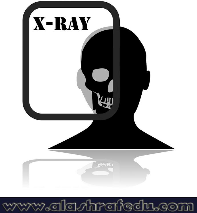 X-Ray Plate Y9zDNrNgssZtU3eerWKB