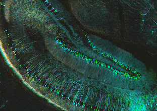 Photo: Layers of cell bodies and branches in the hippocampus, a part of the brain that plays a role in learning and memory.  Depth coded projection (colour) image of mouse hippocampus sections  Sample courtesy of Yi Zuo, Molecular, Cell and Developmental Biology (MCDB) Department, University of California Santa Cruz.  Source:  http://www.flickr.com/photos/75834543@N06/10799673016