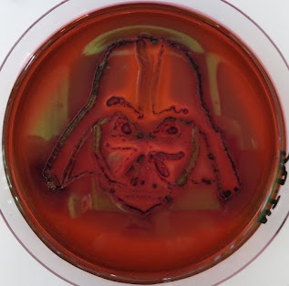 EMB + Escherichia coli et Klebsiella pneumoniae