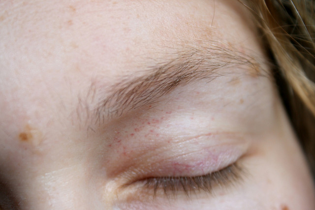 Acne, Milia And Other Irritating Skin issues Fixed