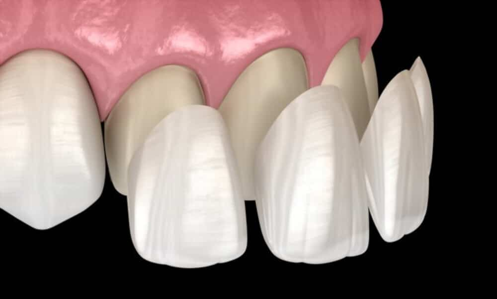 Dental Veneer treatment option of chipped, and cracked teeth.