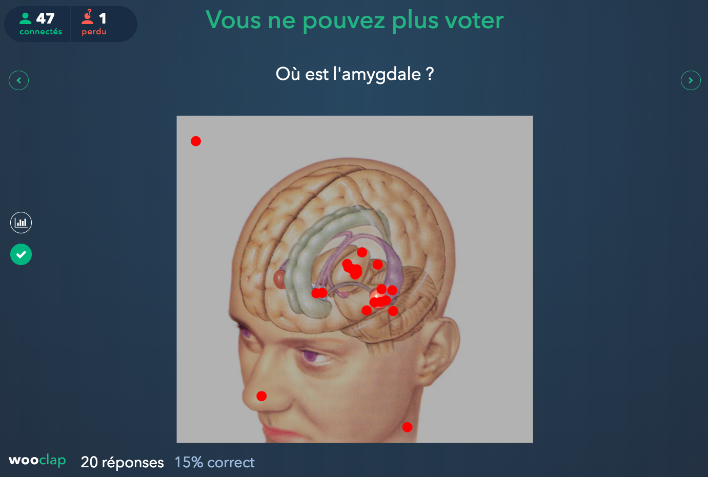 Images montrant les points rouges sur l'image d'une tête où on voit un cerveau en transparence