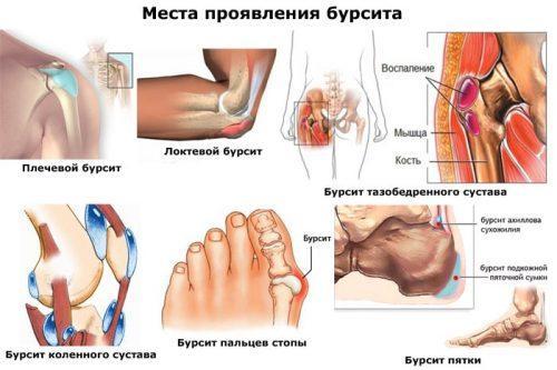 https://loravit.ru/wp-content/uploads/2019/07/bursit-kolennogo-sustava-narodnye-metody.jpg