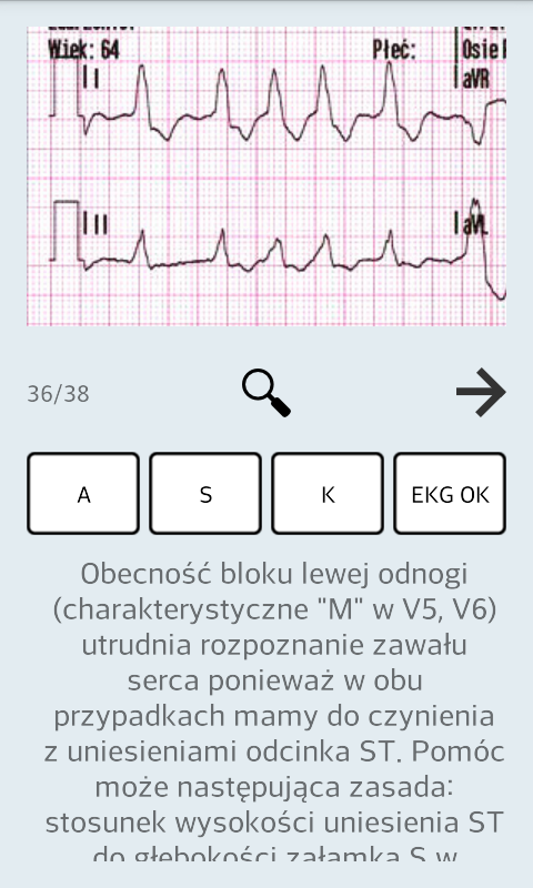 Ekg ratunkowe- screenshot