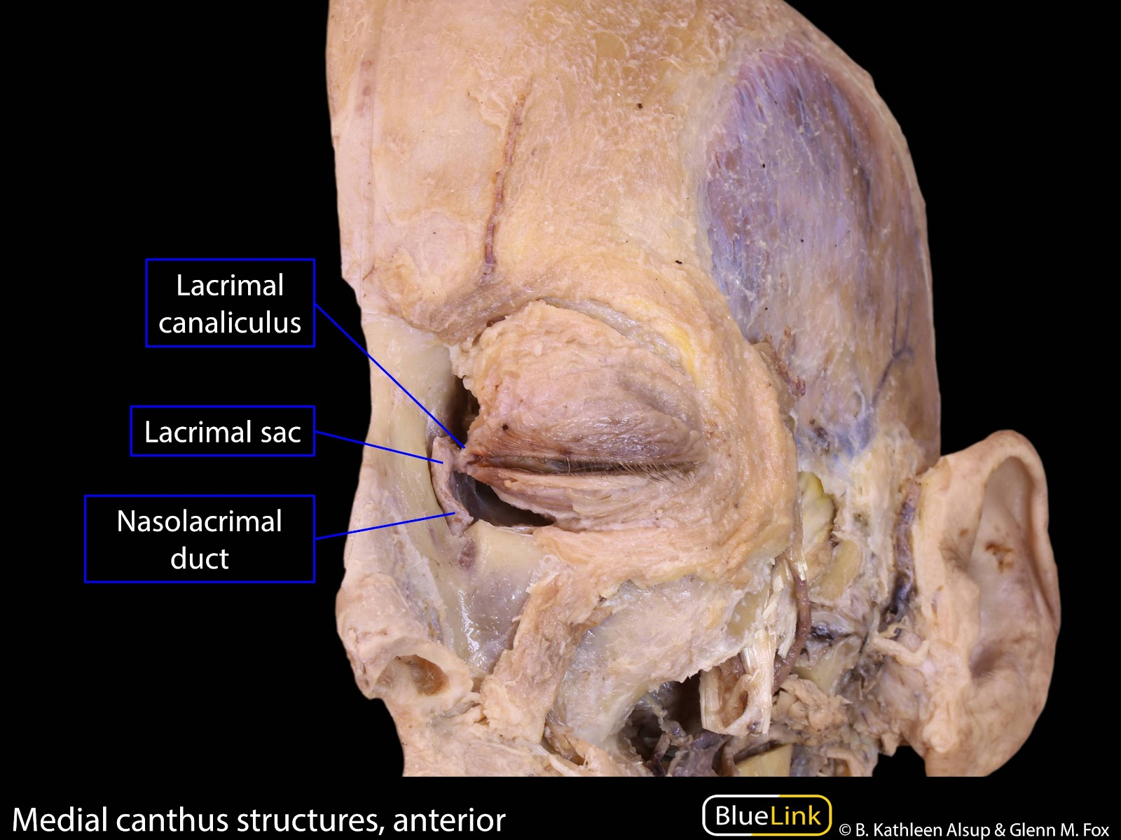 S10 Orbit and Cavernous Sinus - Learning Objectives - BlueLinkInferior Meatus Nasolacrimal Duct
