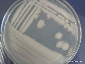 Photo: Bacillus. medio general de crecimiento