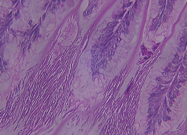 "Hematoxylin and eosin-stained section of the gastric isthmus, demonstrating the ""log-jam"" appearance of Macrorhabdus ornithogaster in situ"