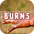 Burns: Causes, Diagnosis, and Management icon