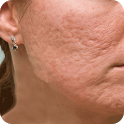 Acne Scar Removal Home Remedy icon