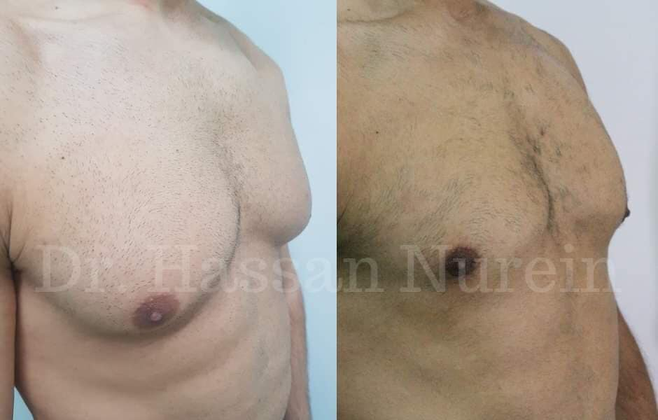 gynecomastia surgery before and after results dr nurein london uk