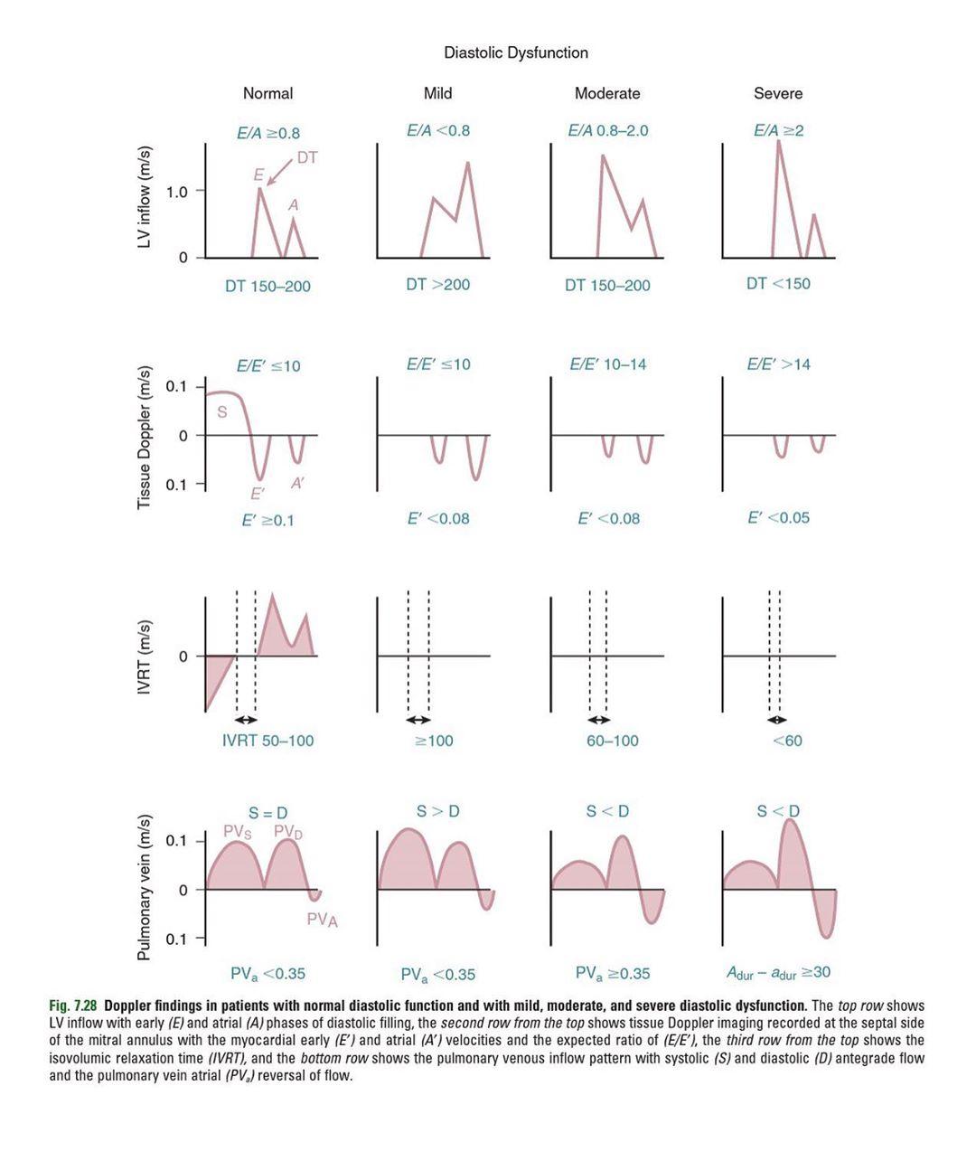 Diastolic Dysfunction Assessment - Normal, Mild, Moderate ...