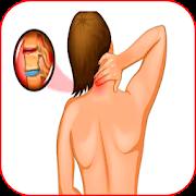 лечение шейного остеохондроза APK