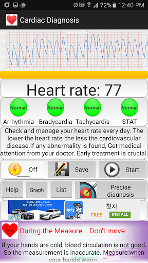 Cardiac diagnosis (heart rate, arrhythmia) 121 screenshots 2