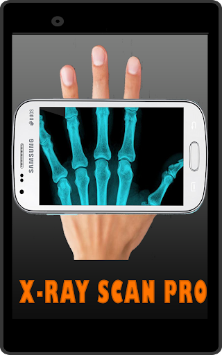X-ray Scan Pro simulated