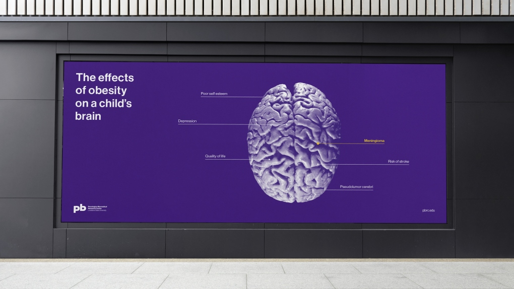 Pennington Biomedical Brain Diagram OOH Billboard