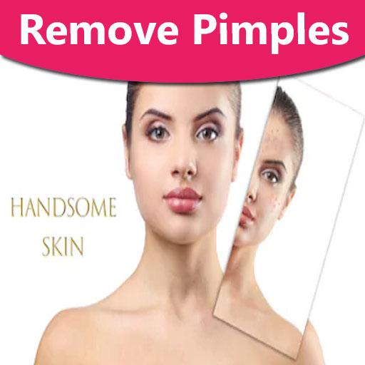 how to remove pimples