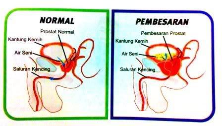 Obat Herbal Penyakit Hipertrofi Prostat