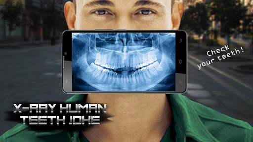 X-Ray Human Teeth Joke