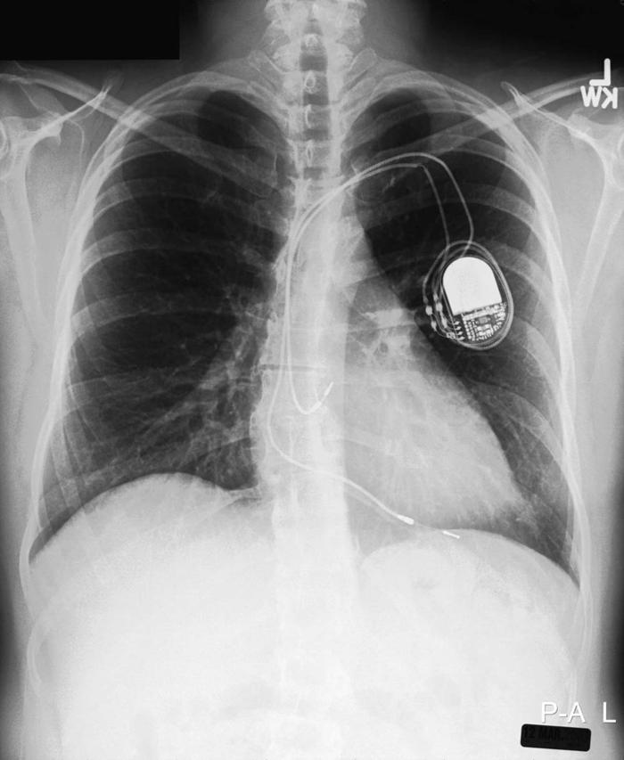 cardiac-arrhythmiasfig10_large.jpg
