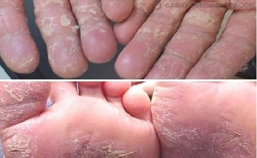 Các triệu chứng bệnh á sừng thường gặp