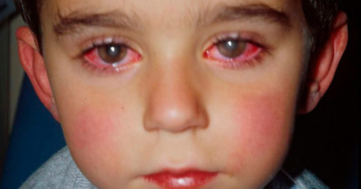 Young Boy Loses 75% of His Eyesight Because of an Innocent Looking Toy
