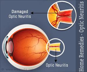 Pengobatan Untuk Sembuhkan Neuritis Optik