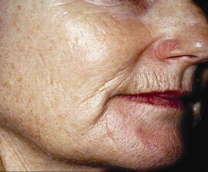 http://www.goodskindays.co.uk/images/before%20and%20after/Skin%20Concerns/Fine%20Lines%20&%20Wrinkles/wrinkles%20-%20before.jpg