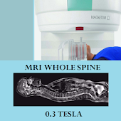 MRI POSITIONING WHOLE SPINE