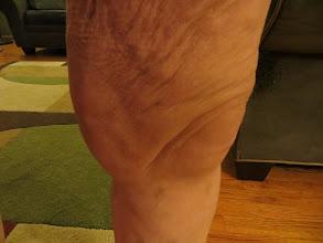 Photo: leg