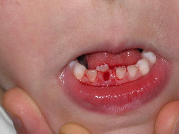 Tình trạng răng trẻ mọc lẫy diễn ra rất nhiều