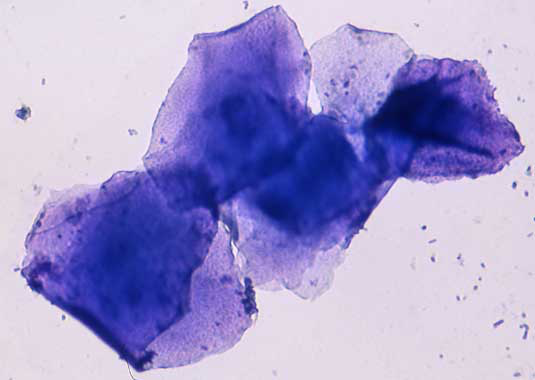 Microfotografía de un frotis vaginal colectado durante el estro temprano, conteniendo solamente células epiteliales superficiales cornificadas y algunas bacterias