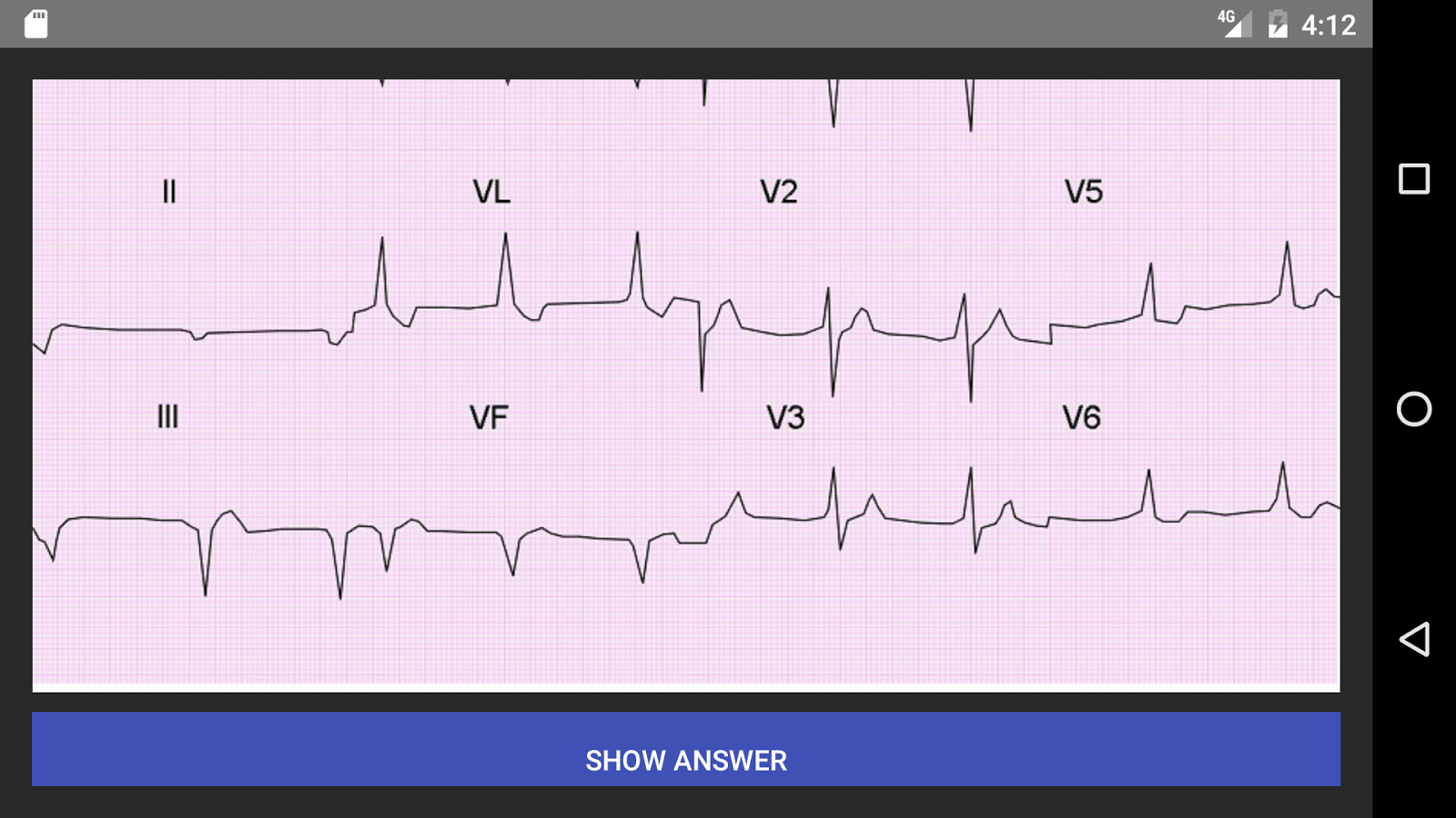 ECG 100 Clinical Cases- screenshot