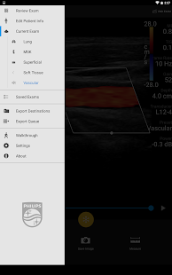 Philips Lumify Ultrasound App- screenshot thumbnail