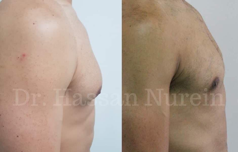 gynecomastia surgery before and after results dr nurein