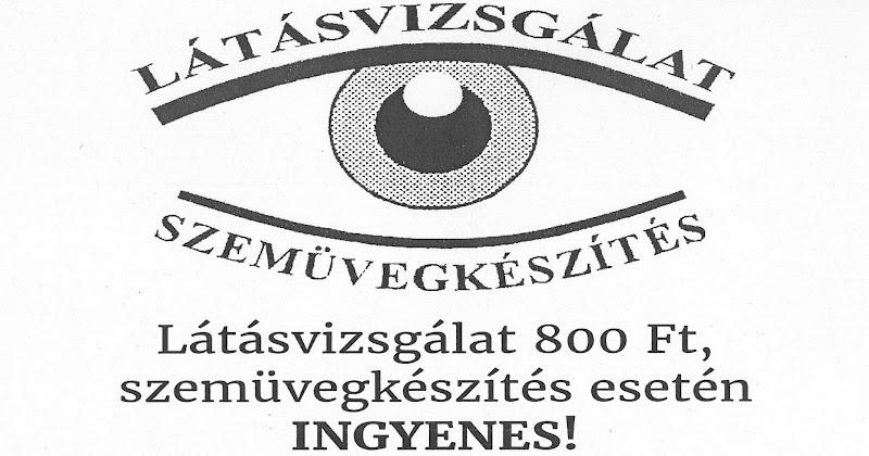 Látásvizsgálat és szemüvegkészítés 2018. március 27